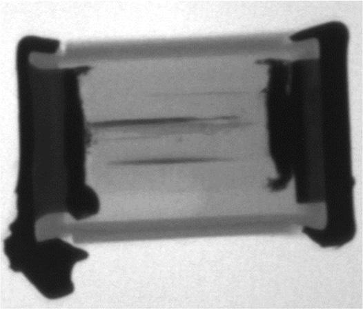 X-ray-image-showing-internal-bridging-of-film-capacitor